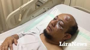 Pemuda Muhammadiyah Mengutuk Tindak  Kekerasan Terhadap Novel Baswedan
